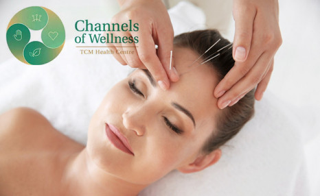 $28 for an Anti-Aging Acupuncture Facelift from Channels of Wellness (a $125 Value)