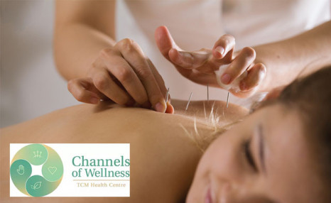 Up to 86% off Acupuncture and Cupping Treatments