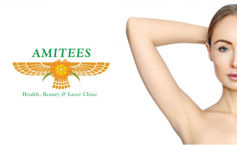$149 for Laser Hair Removal on 7 Body Parts (a $2,000 Value)