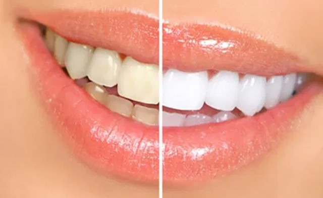 Up to 46% off Teeth Whitening Sessions