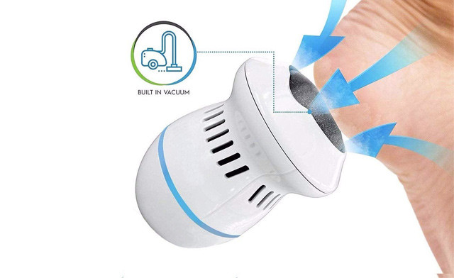 $17.92 for a Callus Remover with Built-In Vacuum (a $32.99 Value)