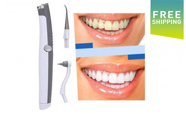 $22.90 for an Electric Ultrasonic Pic Tooth Stain Eraser - Shipping Included (a $60 Value)