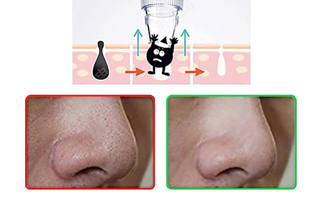 $25.90 for a Blackhead Remover (a $68 Value)