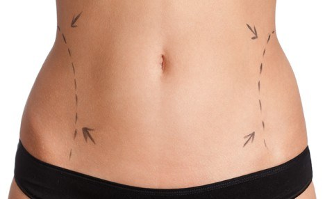 $199 for 2 iLipo Body Contouring Sessions (a $500 Value)